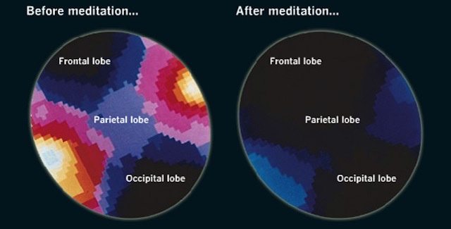 Have You Tried Meditation? 